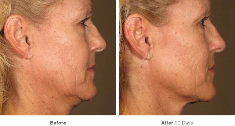 New Painless Ultherapy Available at Wave Los Angeles! Wave plastic Surgery Ultherapy1
