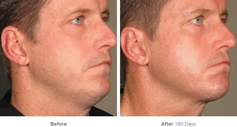 Non-Surgical Wave plastic Surgery Ultherapy3