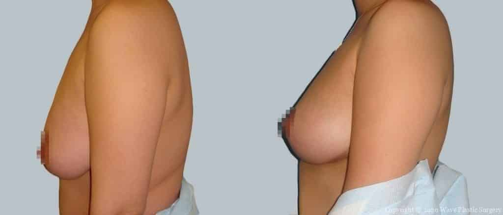Breast Lift Before and After Photograph