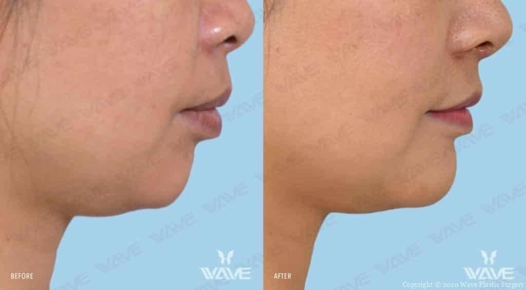 Chin Augmentation Before and After Female Photography 9