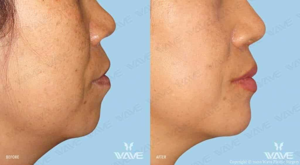 Chin Augmentation Before and After Female Photography 8