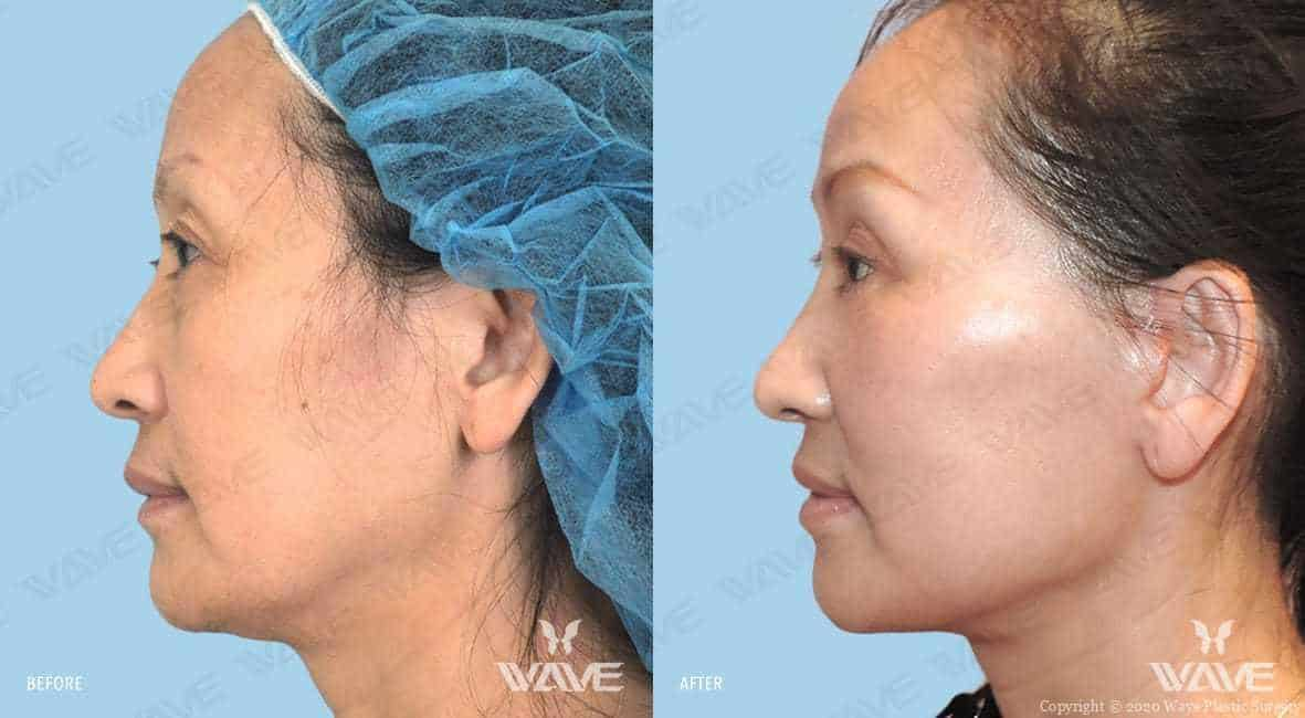 Facelift Before and After Photo 22