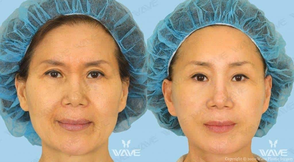 Facelift Before and After Photo 10