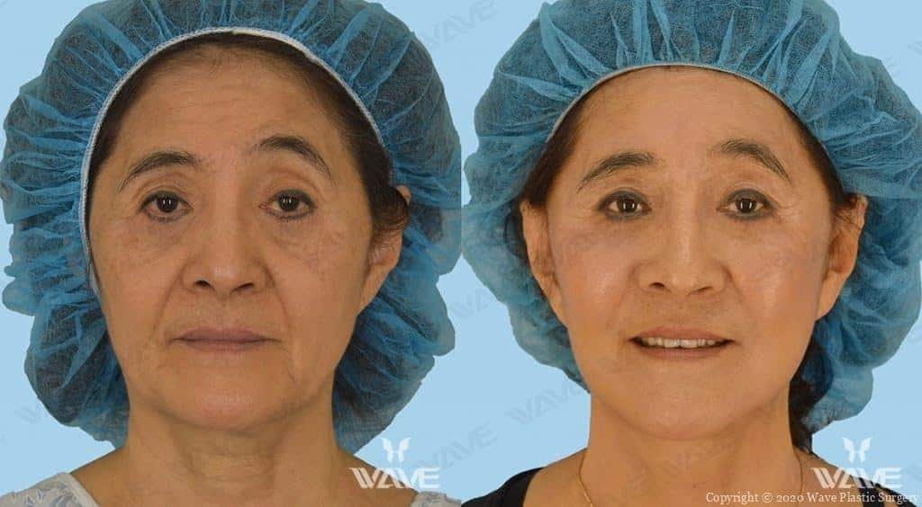 Facelift Before and After Photo 9