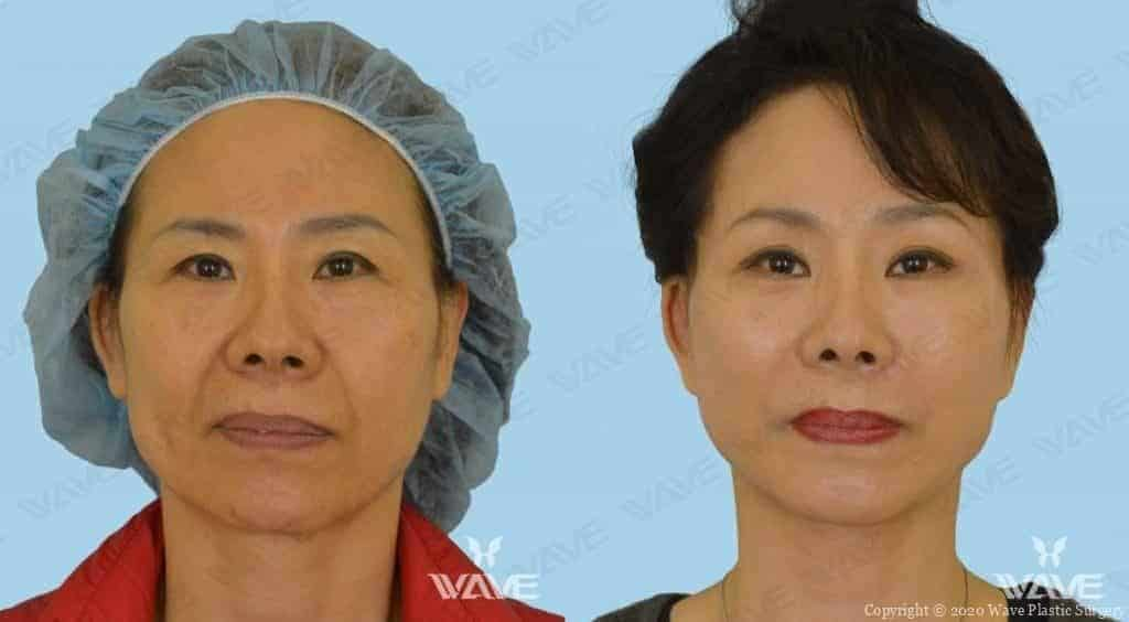 Facelift Before and After Photo 6
