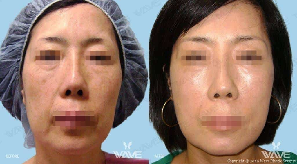 Fat Transfer on face before and after photograph