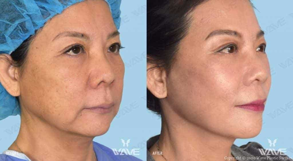 Flash Lift Before and After Photo