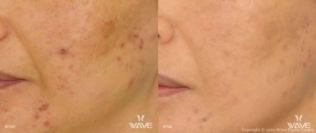 Fractora Before and After photograph