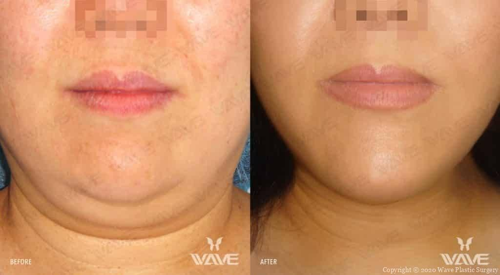 Precision Lift Before and After Photograph