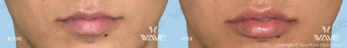Restylane Before and After Photo