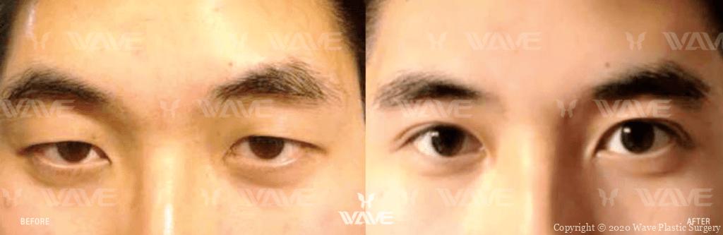 upper blepharoplasty before and after