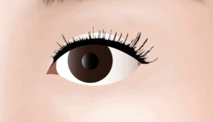 Medial Epicanthoplasty Asian Blepharoplasty in Los Angeles