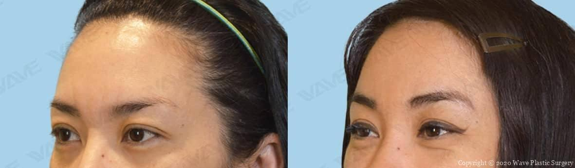 Endoscopic Brow Lift Facelift Forehead and Eyebrow Surgery 14
