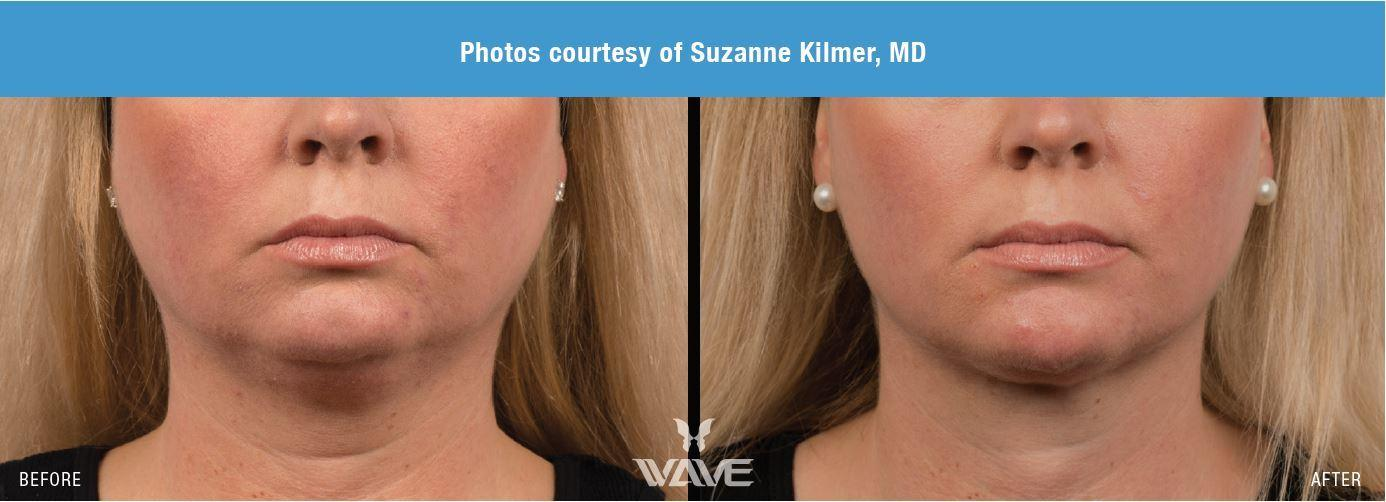 coolsculpting before and after results