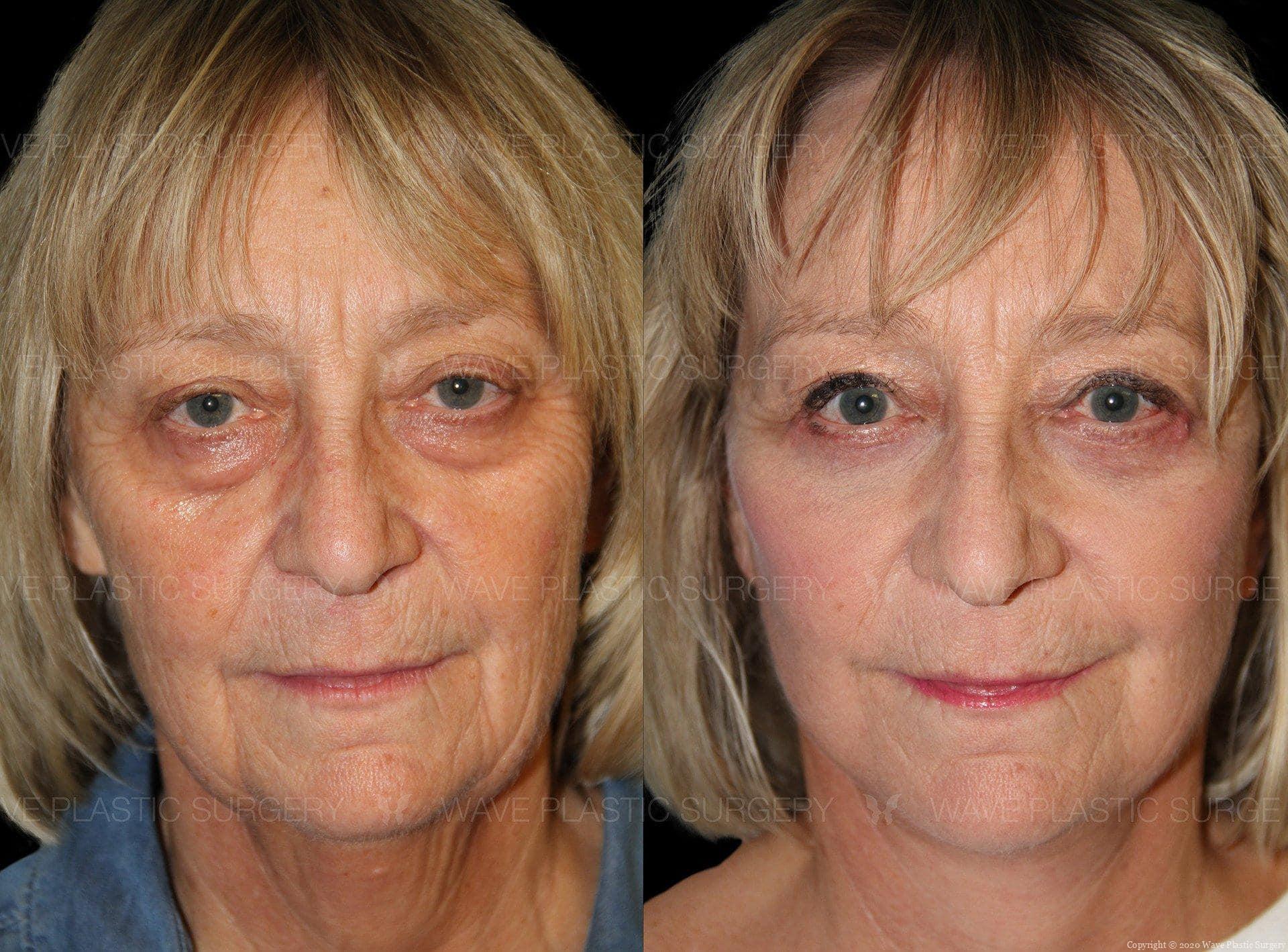 Curelift Facelifts Facial Surgery 1