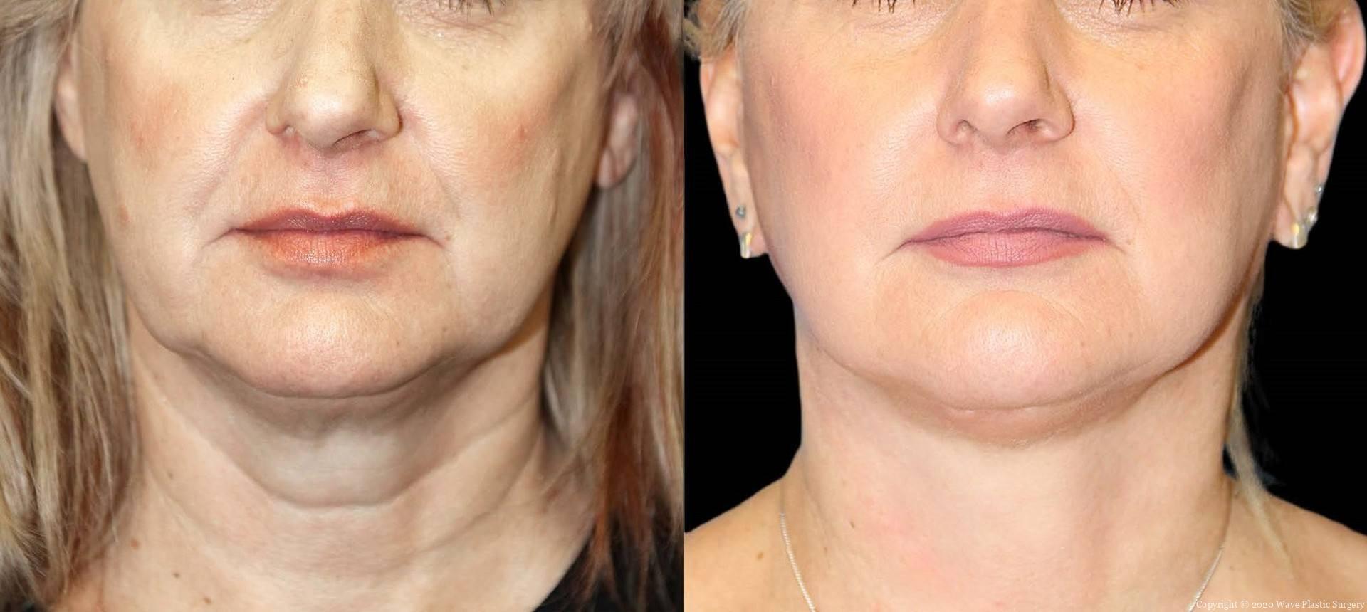 Curelift Facelifts Facial Surgery 4