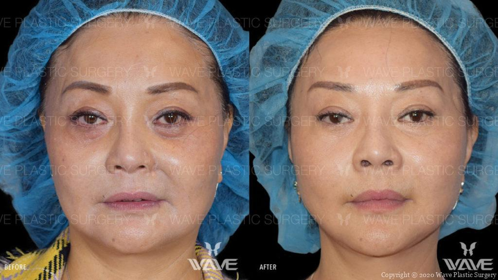 flash lift before and after
