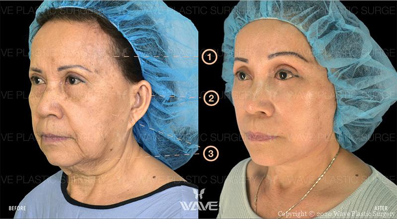 Endoscopic Brow Lift, Lower Eyelid Surgery, and Full Face & Neck Lift before and after