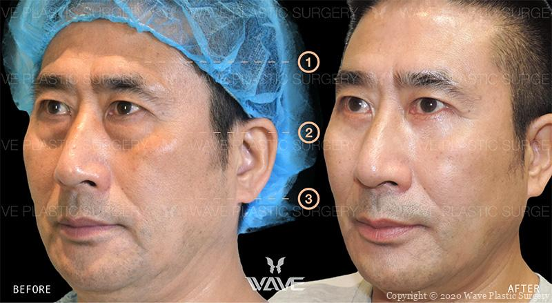 Botox, Lower Eyelid Surgery, and Dermal Filler before and after