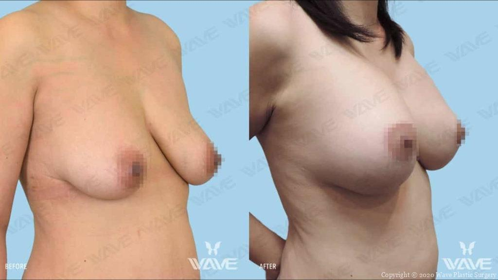 breast life before and after