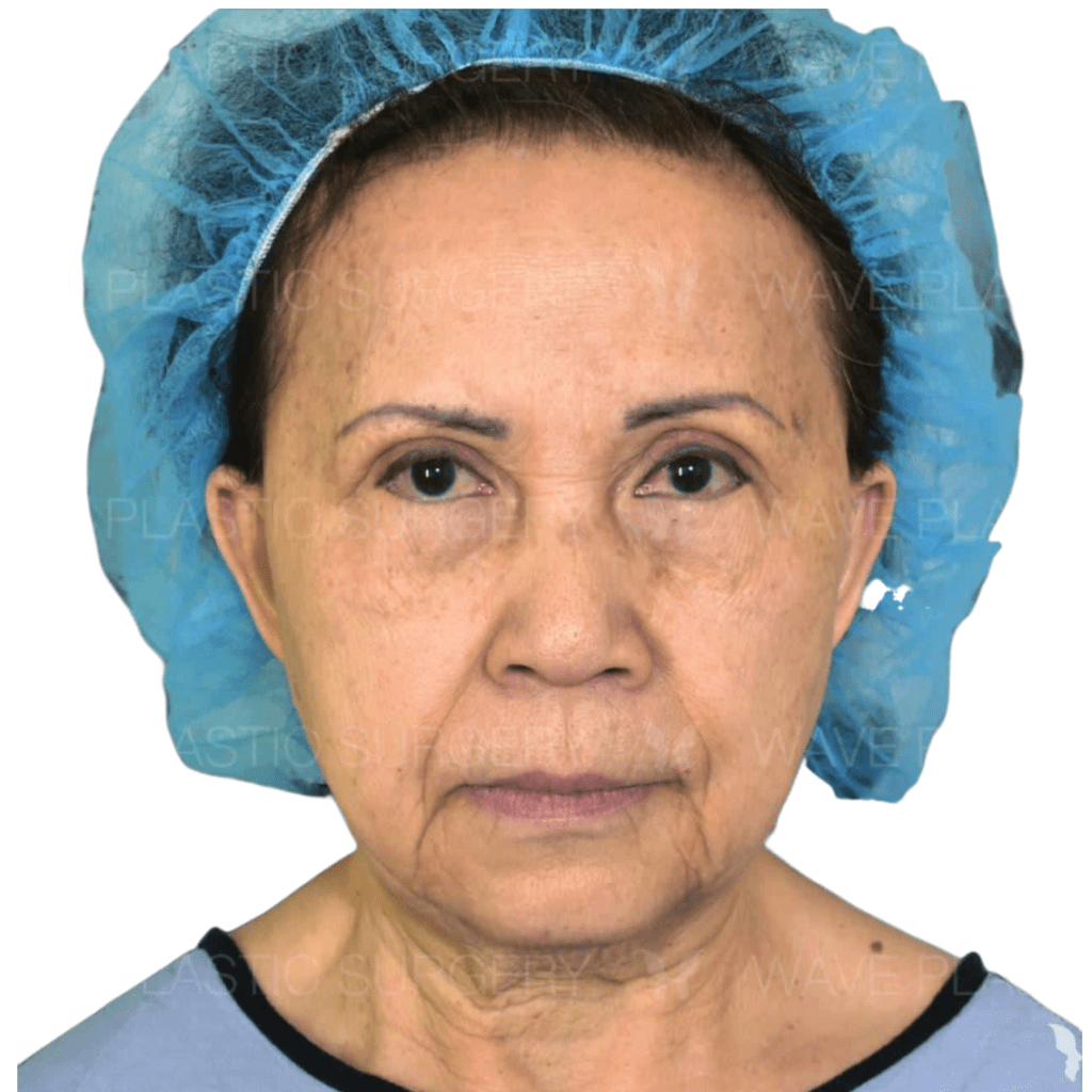 Anti-Aging Treatments For People in Their 30s, 40s, 50s, 60s, and 70s 70s 3
