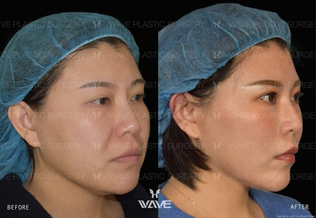Anti-Aging Treatments For People in Their 30s, 40s, 50s, 60s, and 70s Flash Lift 1