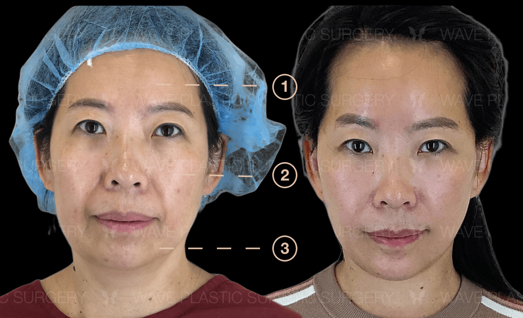 Anti-Aging Treatments For People in Their 30s, 40s, 50s, 60s, and 70s Group 121