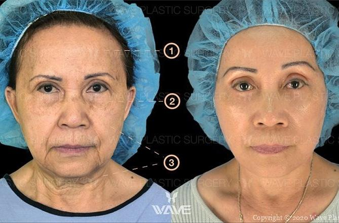 Anti-Aging Treatments For People in Their 30s, 40s, 50s, 60s, and 70s Group 61 800 6