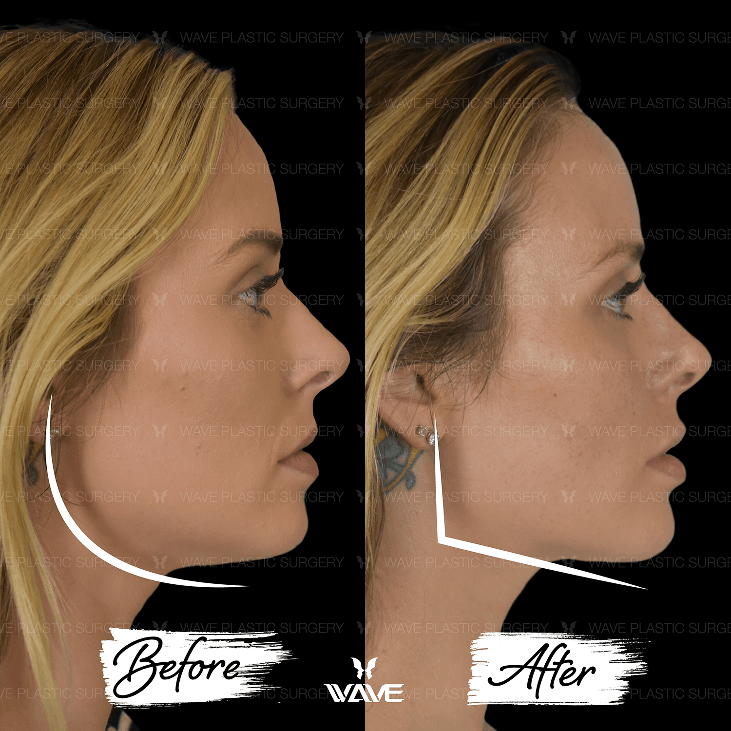 Non-Surgical Ultherapy 2